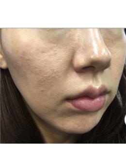 韩国Dr.Homes皮肤科毛孔粗大治疗案例对比_术前