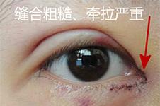 开眼角为何会出现眼袋吗?什么原因造成如何避免