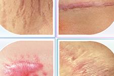 韩国BK整形外科疤痕整形靠谱吗?效果对比如何?