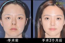 韩国挛缩鼻鼻修复专家都有哪些?排名不分先后顺序!