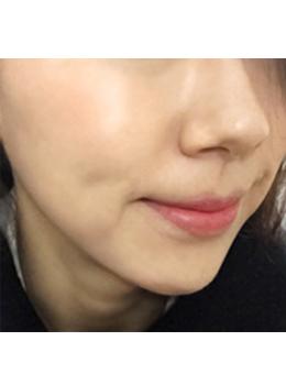 韩国Dr.Homes皮肤科毛孔粗大治疗案例对比_术后