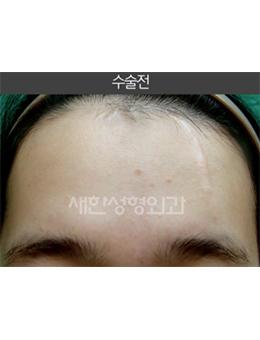 韩国saehan整形外科面部去祛疤手术对比案例
