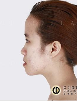 韩国新帝瑞娜整形外科自体软骨隆鼻对比图