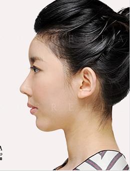 韩国新帝瑞娜整形外科鹰钩鼻矫正对比图
