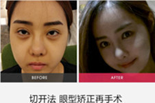 集结!双眼皮修复、韩国包眼角这三家医院口碑较高!