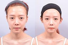 韩国普罗菲耳profile招风耳矫正效果如何?贴发耳能矫正吗?