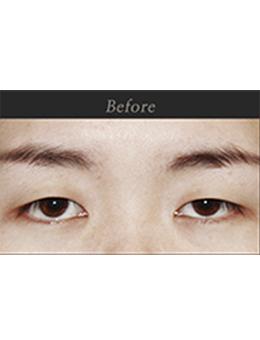 韩国原辰整形外科双眼皮整形对比案例