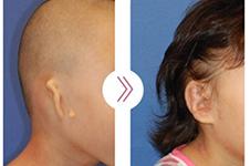 韩国普罗菲耳Profile耳畸形手术安全吗?会不会有后遗症?