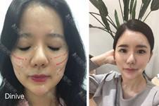 韩国divine整形外科宋善浩做线提升真人案例效果怎么样?