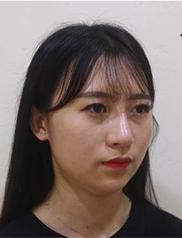 韩国raffine医院下颌缘v脸吸脂对比案例