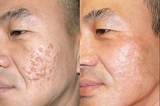 韩国皮肤管理好医院收录(一):林二石VS童颜中心效果对比