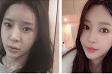 韩国女神医院微笑唇与现代美学相比哪家好?会留疤吗?