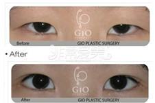 怎样防止外眼角回缩?GIO、琦林、伊美芝方法效果各不同!