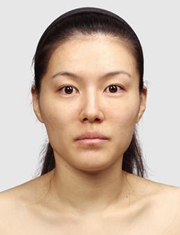 韩国TL整形医院-韩国TL整形外科下颌角手术对比案例