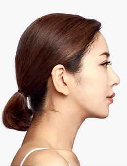 韩国TL整形医院-韩国TL整形外科面部脂肪填充手术对比案例