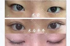 酒井伦明做双眼皮怎么样?称得上日本做双眼皮好医生吗?
