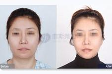 拯救轮廓手术后脸颊肉下垂,mini拉皮+面吸提升效果好!