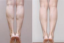 韓國麗珍小腿縮小術效果怎么樣?能永久維持嗎?