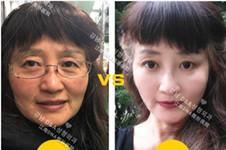 韩国dna整形医院好不好,他们家皮肤管理大概多少钱?