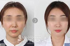 为什么做完轮廓手术显老?皆因你不知道韩国轮廓后要做这些