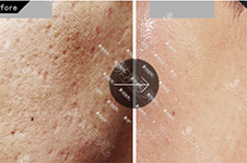 韩国皮肤管理好医院收录(三):TAM皮肤科VS韩国CU可琳雅