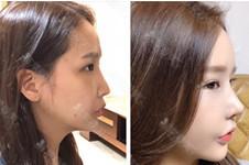 韩国MIND整形医院口碑好吗?位置在哪?隆鼻术后效果好吗?