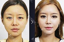 双眼皮眼部提肌手术危害分析,韩国k-beauty要用非切开避免!