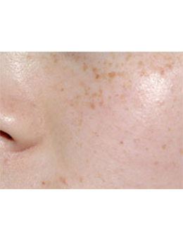韩国4ever整形外科面部祛斑手术对比案例