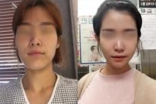 分享我在韩国菲斯莱茵做颧骨+下颌角三个月变化经历!