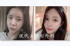 搜罗韩国5家厚唇改薄医院:清潭zn现代美HB李炫直和女神金薇