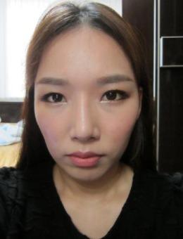韓國普羅菲耳Profile官網輪廓整形案例圖