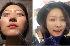 韩国美迪莹擅长轮廓是真的吗?中国人手术比韩国人贵多少