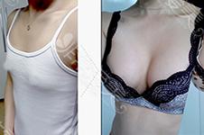 韩国隆胸排行榜分享,告诉你PJS原辰GLAM韩国做胸医院哪家好