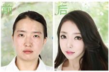 韩国灰姑娘整形与纯真医院的双眼皮手术哪家好,多图举例~