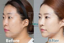 鼻基底手术是怎么做的,韩国哪家医院效果好?