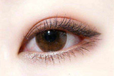 韩国TOPCLASS外眼角手术有眼睑下至效果吗,价格贵吗?