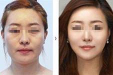 多图揭秘韩国拉本医院童颜术,效果好到不像话!
