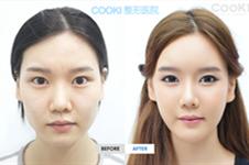 韩国本爱医院与cooki医院面部轮廓案例曝光,术后效果超自然