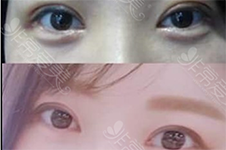 韩国希克丽与Crapas哪家双眼皮效果更自然?谁的价格有优势
