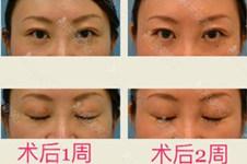 日本的整形技术怎么样?日本做的埋线双眼皮会掉吗?