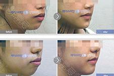 下巴后缩正畸有什么巧妙办法?治疗时间周期有多长
