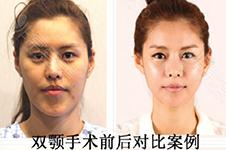 韩国做双鄂好院长背景揭秘,手术特点及案例全面分析!
