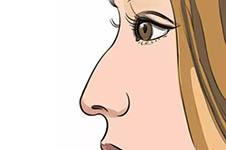 鼻綜合手術后鼻尖下旋怎么辦,如何避免怎樣矯正?