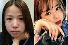 韓式鼻翼縮小手術方式科普,拒絕疤痕術后恢復超自然!