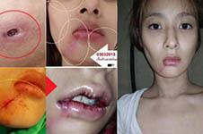 磨骨手術后遺癥有哪些,韓國醫院如何避免怎樣修復?