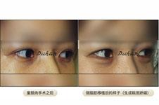 激光去眼袋疼吗,没效果怎么办?韩国整形医院这么做!