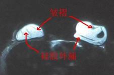 隆胸假体取出后会干瘪吗?修复方式哪种既安全又不易炎症