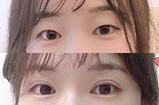 韩国Promise整形医院做眼睛怎样?配合眼底脂肪重排多少钱?