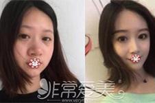 泰国出名整形医院:然禧yanhee项目全攻略!轮廓隆鼻全包含!