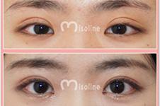 韓國Misoline醫院做雙眼皮修復怎么樣?有沒有案例值得看